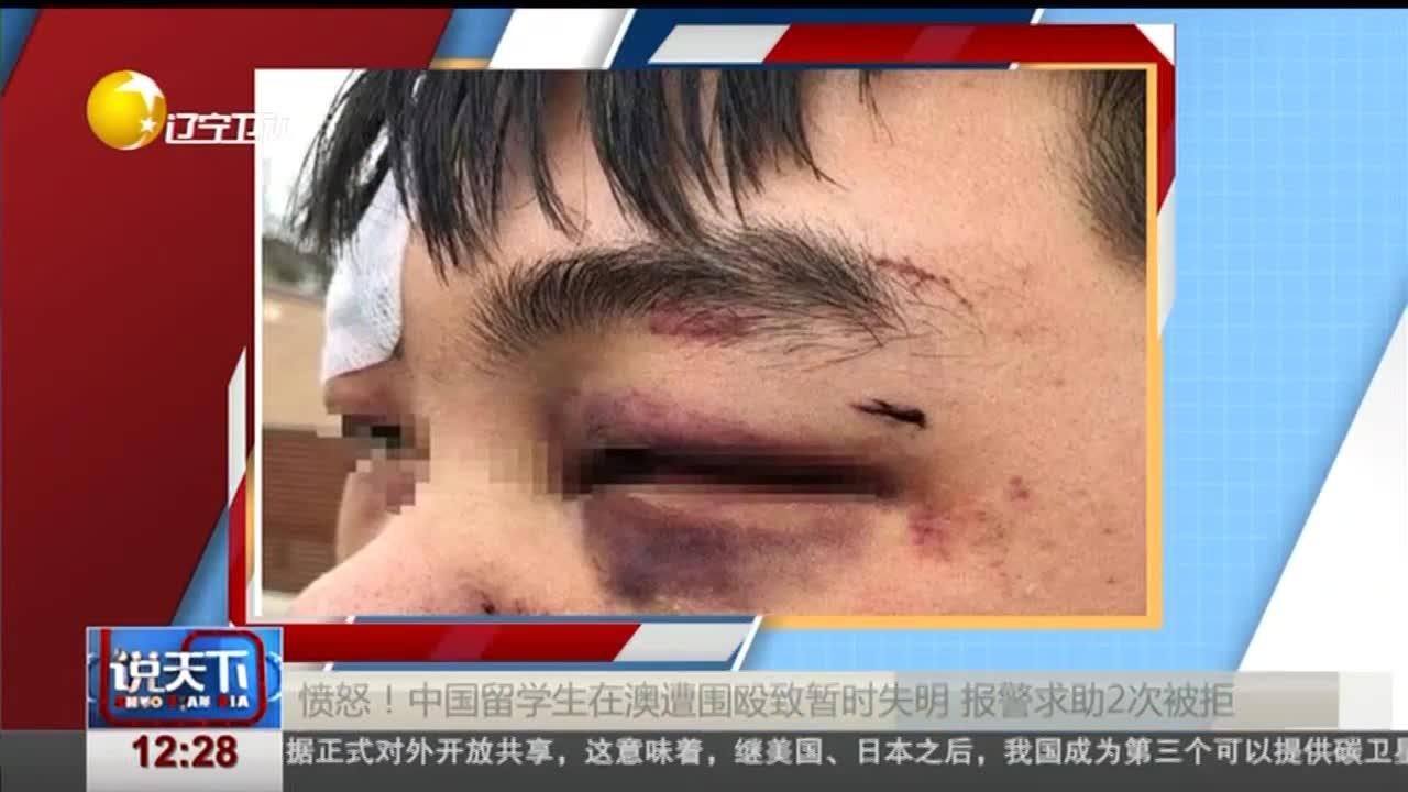 愤怒!中国留学生在澳遭围殴致暂时失明 报警求助2次被拒